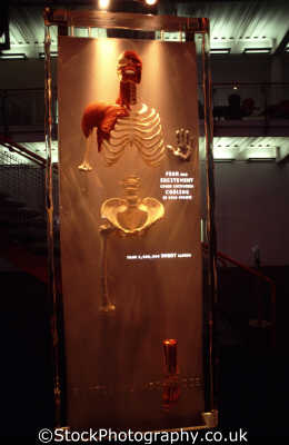 body zone exhibit skeleton medicine health science misc. 2000ad y2k millenium dome greenwich london cockney england english angleterre inghilterra inglaterra united kingdom british